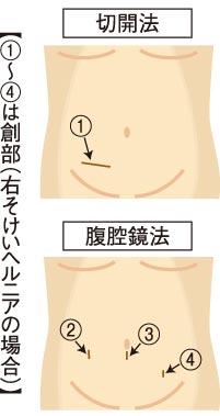 2015112810_fuku